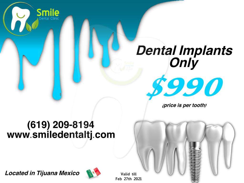 Dental Implants at smile dental clinic in tijuana